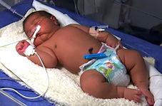تولد سنگین وزنترین نوزاد ایران در یزد