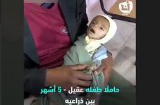 لحظاتی دردناک از تلاش پدر یمنی برای نجات جان کودک شیرخوارهاش