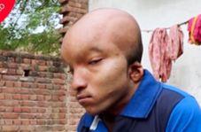مرد هندوستانی که به فرازمینی معروف است!