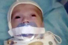 رفتار دردناک با نوزاد ۱۲ هفتهای در بیمارستان